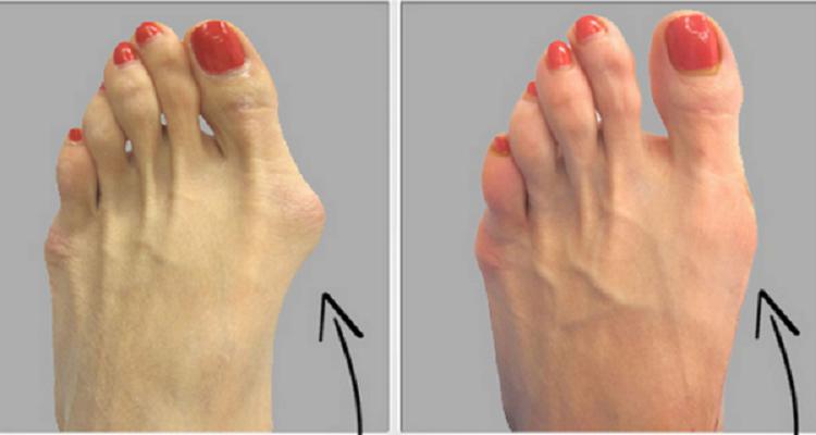 كيفية علاج اعوجاج القدم طبيعيا.. وبدون جراحة
