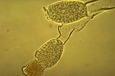 Divisi Chytridiomycota