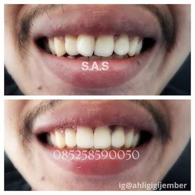 Foto hasil perbaikan gigi depan miring dan maju dengan veneer dan tanpa behel