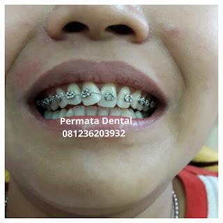 gambar foto behel bracket kawat gigi sebelum dan sesudah perawatan untuk memperbaiki merapikan gigi gingsul gigi miring renggang tonggos berantakan keluar masuk jarang diastema maju mundur tidak rapi tidak beraturan bali denpasar banyuwangi jember tidak rata kocar kacir