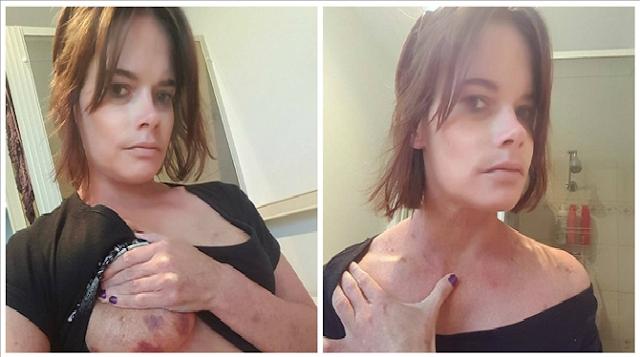 Προσοχή σκληρές εικόνες: Την βίασε άντρας που συνάντησε σε site γνωριμιών