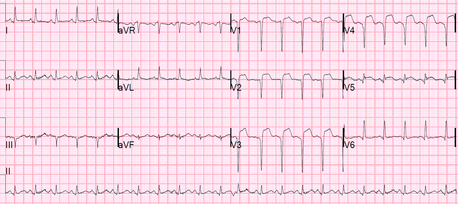 Dr. Smith's ECG Blog: ST Elevation and QS-waves in a ...