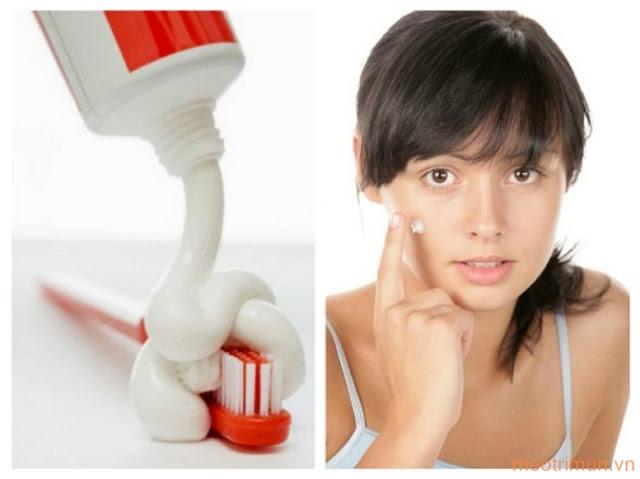 Cách trị mụn bọc bằng kem đánh răng