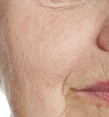 When collagen breaks down in your skin, the skin ages prematurely