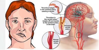 Pengobatan Untuk Mengatasi Penyakit Stroke Secara Efektif, Aman Tanpa Efek Samping
