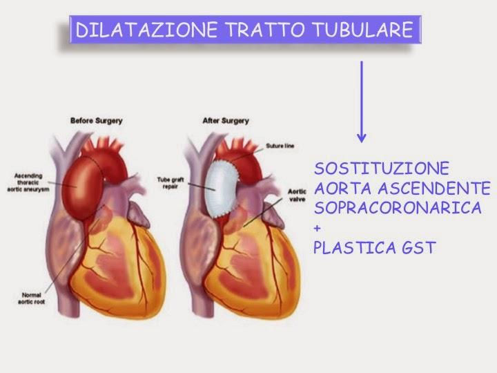 stenosi e impotenza della valvola aortica