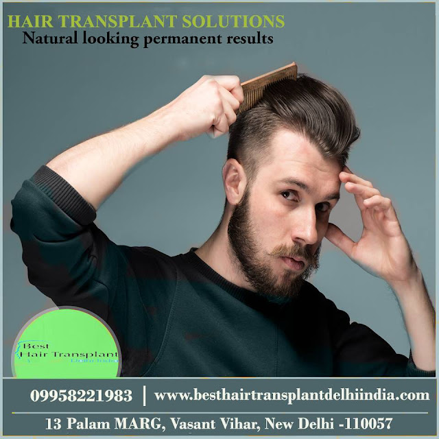 hair transplant surgery in Delhi, hair surgery in Delhi, scalp reduction surgery cost in India, hair transplant surgeon Delhi, FUE hair surgery, hair loss treatment, best hair restoration surgery, #scalpreduction, #prptreatment, #besthairtransplant, #hairsurgeon