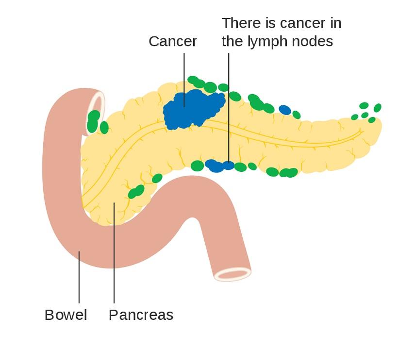 Asuhan Keperawatan Kanker Pankreas - Intervensi