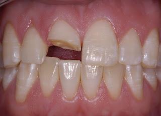 răng bị mẻ thì làm sao để khắc phục?