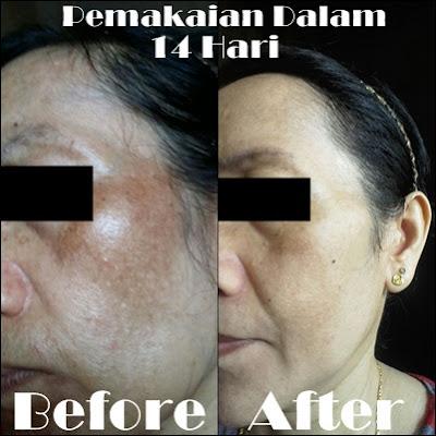 Liyoskin Cream Penghilang Flek Hitam Paling Ampuh