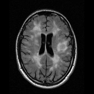 2006 MRI Scan showing lesions in my brain