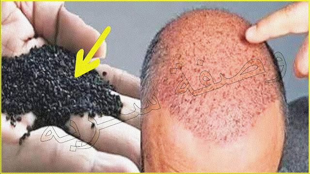 ضعيها لفرغات شعرك و الصلع وأقسم بالله النتيجة ستبهرك تنبت الشعر وتملأ الفراغات من أول استعمال
