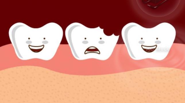 Benarkah Gigi Berlubang Dapat Menyebabkan Kematian?