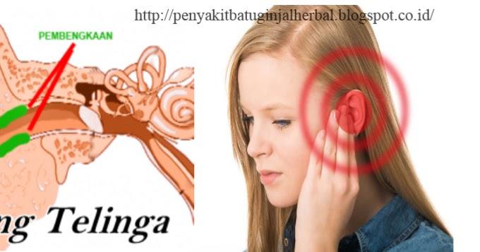 Cara Mengobati Penyakit Radang Telinga   AHLINYA ...