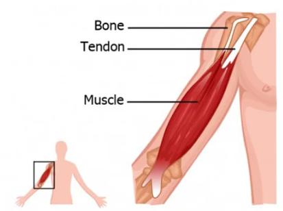 Pengertian Tendon, Fungsi, Struktur, Macam-Macam dan Penyakit Pada Tendon Lengkap