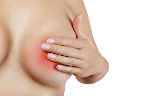 Mastitis Treatments Breast Infection