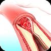 daños vasculares y enfermedades de la sangre