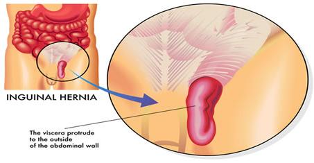 cara mengobati hernia tanpa operasi