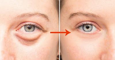 cara menghilangkan kantung mata hitam secara permanen