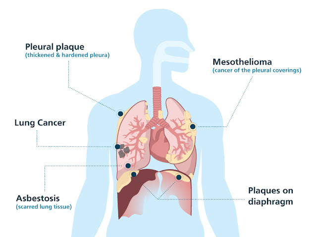 A Short Introduction To Mesothelioma