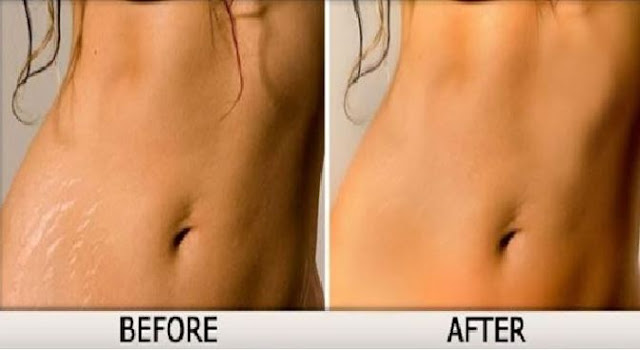 How to Remove Stretch Marks Natural Remedies - Health Tips