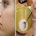 Rub This on Any Scar, Wrinkle, or Stain on Your Skin and See Them Disappear in Minutes