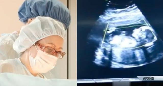 Didatangi Ibu Hamil, Sang Dokter Pun Syok Waktu Lihat Bayi di dalam Perut Sudah Begini !!