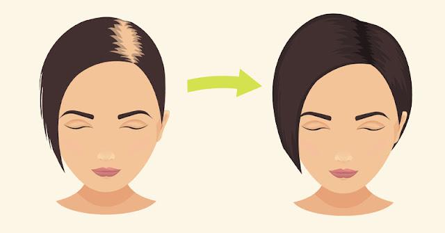 Le bicarbonate de soude Pour Arrêter La Perte De Vos Cheveux  Et Favoriser Sa Croissance.
