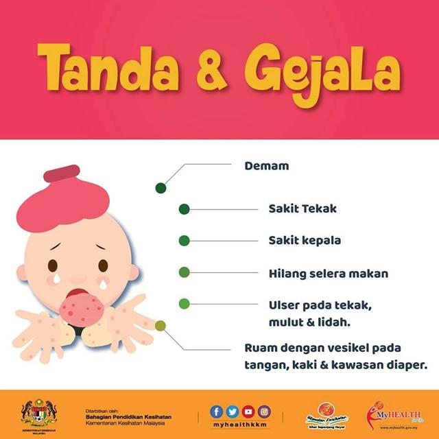 Tanda Dan Gejala HFMD | Ibubapa Please Alert....