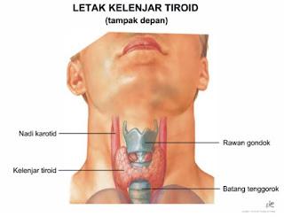 Penyebab Penyakit Tiroid, ini Obat Tiroid Mujarab, Ampuh Mengobati Penyakit Tiroid Secara Alami