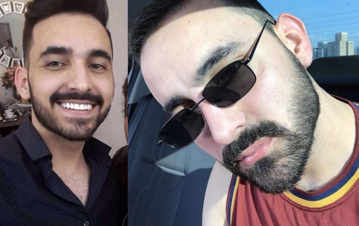 Antes e depois do microagulhamento