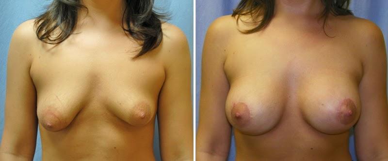 cirurgia de silicone