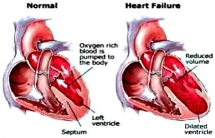 Makanan Yang Aman Untuk Jantung sehat