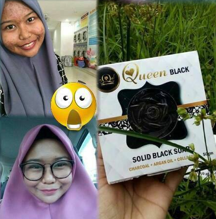 queen black soap feedback
