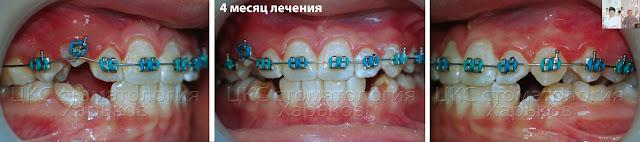 4 месяц ортодонтического лечения