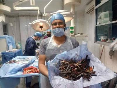 Psychic Disorder: Doctors Remove Nails, Spoon, Wood and Other Materials from a Woman's Stomach