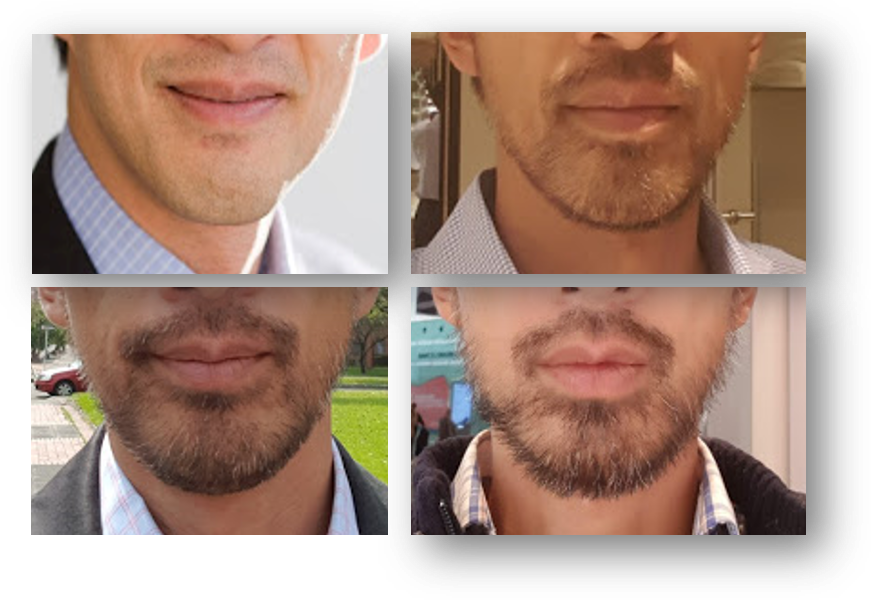 How to Grow a Beard as Asian without minoxidil - Enjoy Life