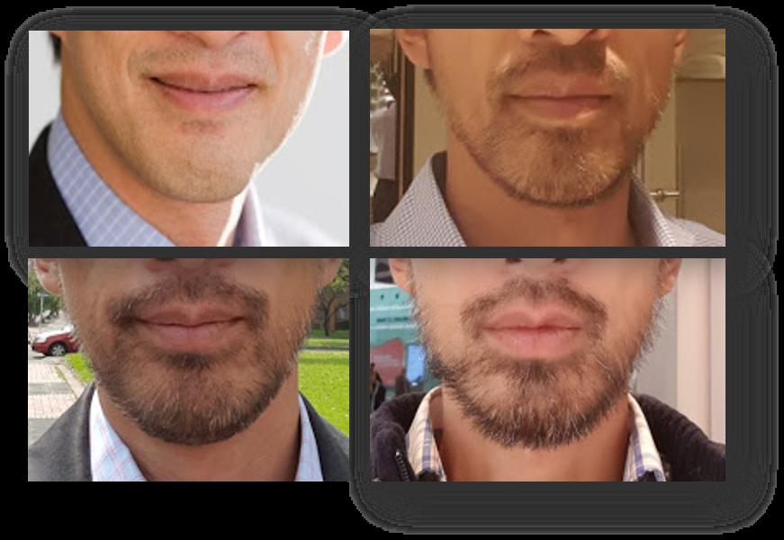 Asian Beard