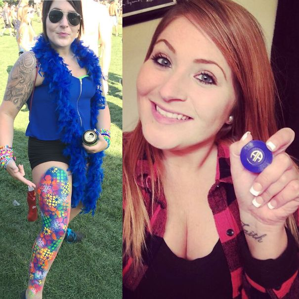 10+ Before-And-After Pics Show What Happens When You Stop Drinking - 1 Year Sober!