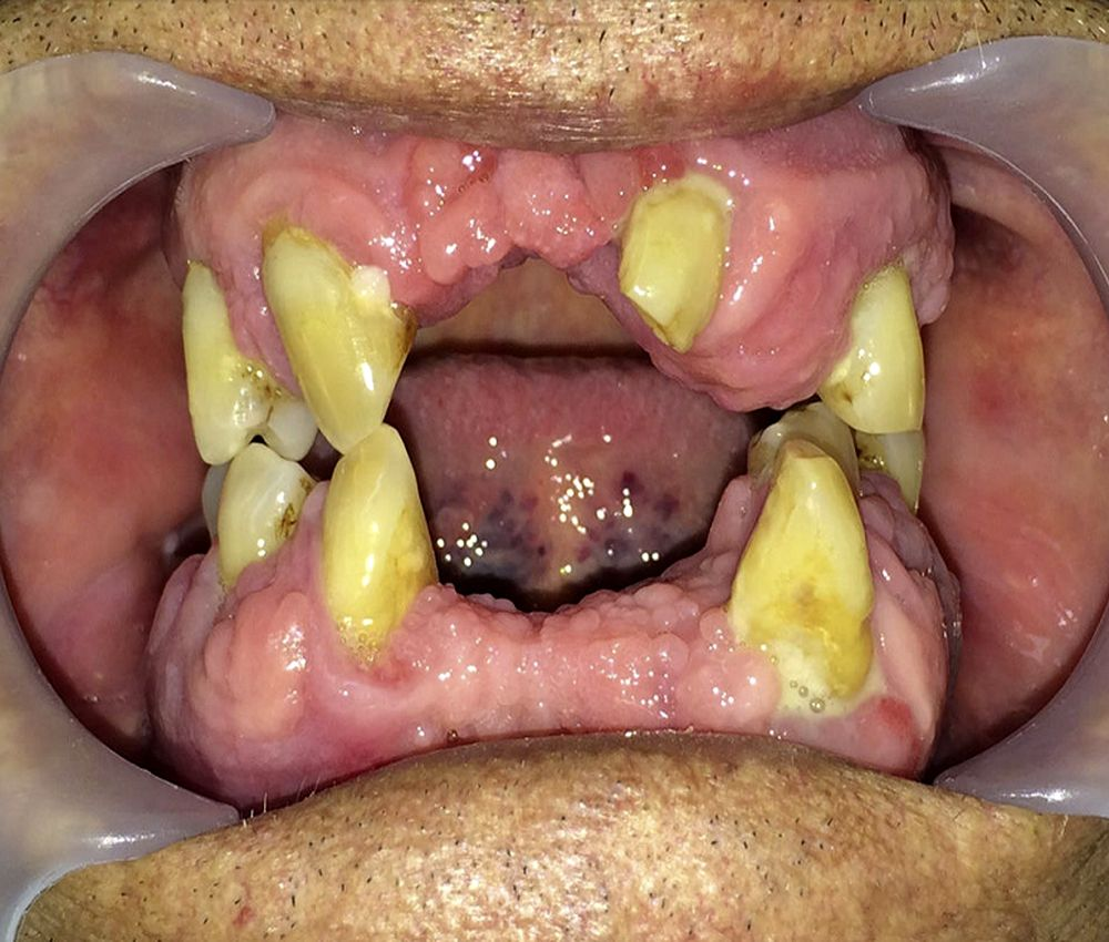 ciclosporina-periodoncia