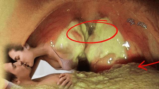 papiloma humano se puede contagiar por besos