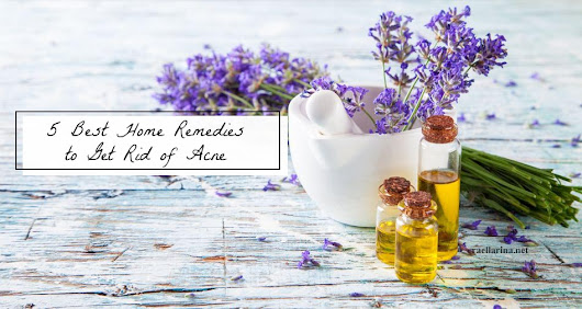 5 Best Home Remedies to Get Rid of Acne