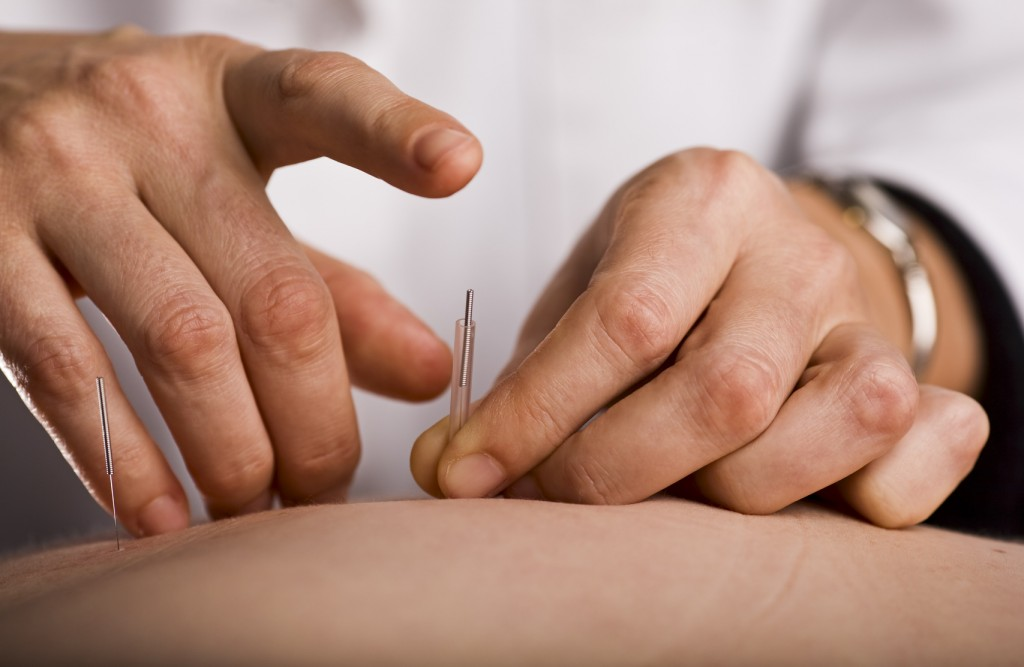 Acupuntura nervo na dor após no mão a