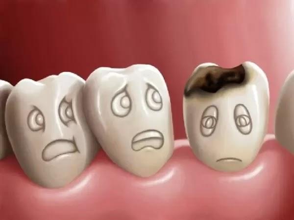 Cùng tìm hiểu về bệnh sâu răng và nguyên nhân gây bệnh sâu răng