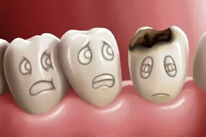Sâu Răng Là Gì - Nguyên Nhân Sâu Răng