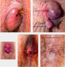 Obat Ambeien Hemorrhoid