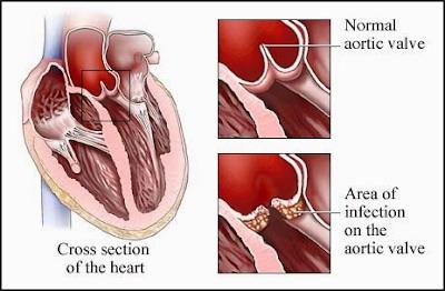 http://www.pusatmedik.org/2017/01/endokarditis-definisi-gejala-penyebab-serta-pengobatan-dan-pencegahan-penyakit-endokarditis-dalam-ilmu-kedokteran.html