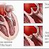 Endokarditis Definisi Gejala Penyebab Serta Pengobatan dan Pencegahan Penyakit Endokarditis dalam Ilmu Kedokteran