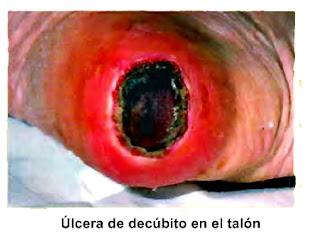 Úlceras de codo o decúbito enfermedad piel