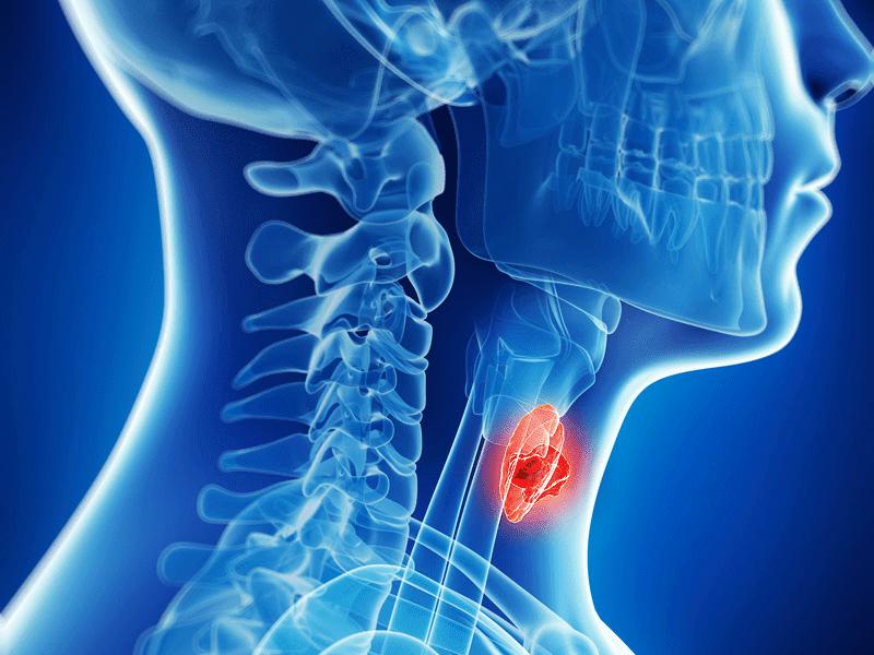 hpv bone cancer